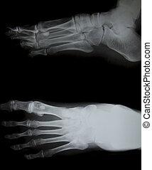 X-ray of both human feet.