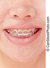 Close-up of a smiling young teenager with braces