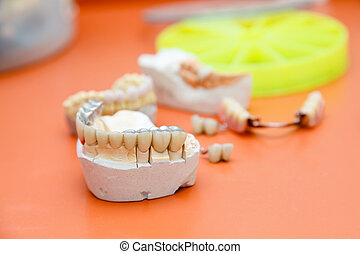Metalo-acrylic teeth - Metal and acrylic bridge on gypsum...
