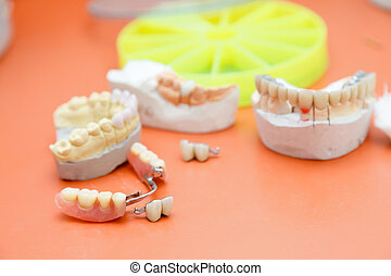 Skeletal prosthesis in the dentist's office - random dental...
