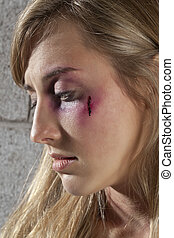 black eye and wound of woman - Black eye and wound of woman...