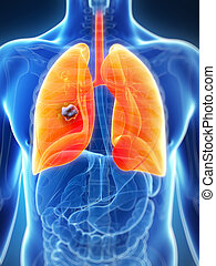 Male lung - cancer - 3d rendered illustration of the male...