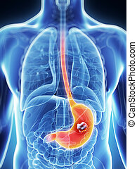 Male stomach - cancer