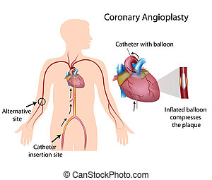 Coronary angioplasty, eps10 - Coronary angioplasty procedure...