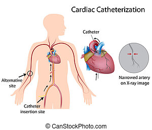 Cardiac catheterization, eps10 - Cardiac catheterization...