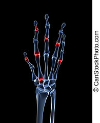 Arthritic hand - 3d rendered illustration of an arthritic...