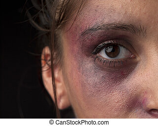 cropped image of a woman face with bruise on it - Cropped...