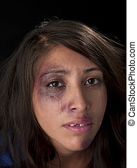crying woman with bruises on her face - Close-up of a crying...