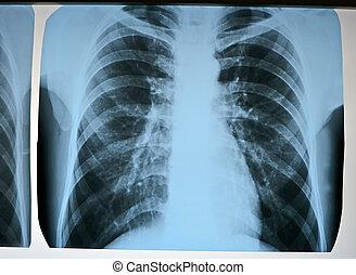 pneumonia, teste, exploração, modernos, raios...