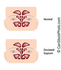 Deviated nasal septum, eps10 - Normal and deviated nasal...