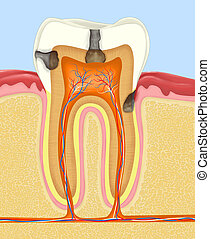 carious human tooth - Carious human tooth cross-section