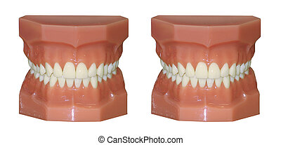 A pair of plastic reproduction human teeth models isolated...