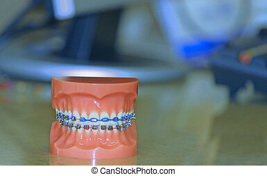 A colorful set of full mouth upper and lower braces on a...