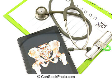 Pelvis bone x-ray image show in tablet on medical chart...