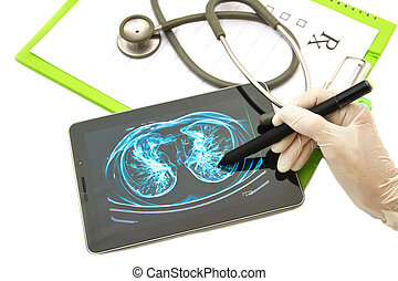Doctor looking chest x-ray image on tablet for medical exam...