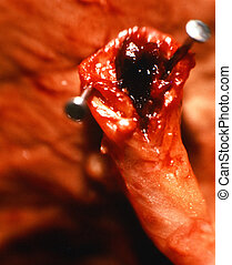 Blocked artery. - Blocked artery shown in a surgical...