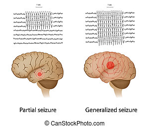 Partial and generalized epilepsy - EEG patterns in partial...