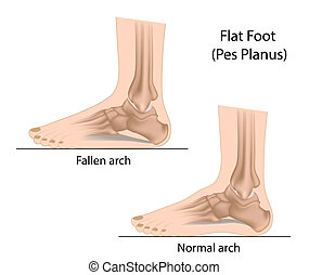 Flat foot, eps10 - Normal arch and fallen arch