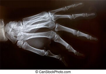 X-ray of hand - Detail of an x-ray of a hand