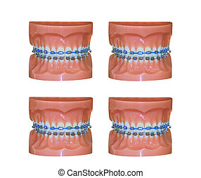 Four pair of dental molds with braces isolated on white