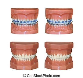 Two pairs of dental molds one with braces and one without...