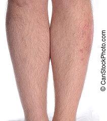 piel, enfermedad, pierna