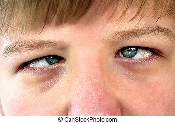 Cross-Eyed Teen - Closeup of the crossed eyes of a teenage...
