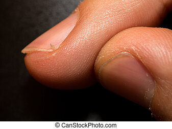 hangnail - Closeup of finger with hangnail, caucasian man