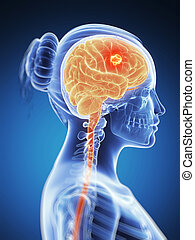 Highlighted - brain cancer - 3d rendered illustration -...