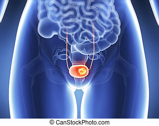Highlighted - bladder cancer - 3d rendered illustration -...
