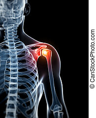 Highlighted - painful shoulder - 3d rendered illustration -...