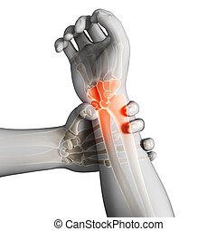 Highlighted armwrist - 3d rendered illustration - painful...