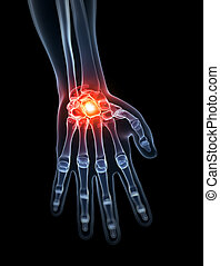 Highlighted wrist - 3d rendered illustration - painful wrist
