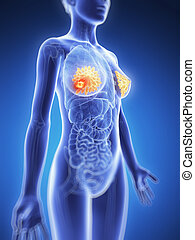 Breast cancer - 3d rendered illustration - breast cancer
