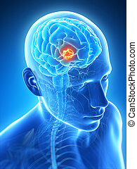 Brain tumor - 3d rendered illustration - brain tumor