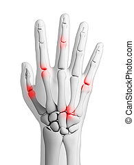 Arthritis - 3d rendered illustration - arthritis
