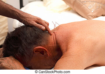 Acupuncture 1 - Actual acupuncture being done on male adult...
