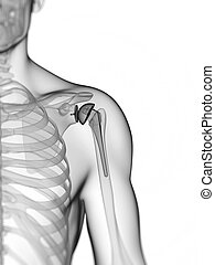 Shoulder replacement - 3d rendered illustration of a...