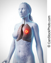 Lung cancer - 3d rendered illustration of lung cancer