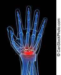 Carpal tunnel syndrome - 3d rendered illustration of the...