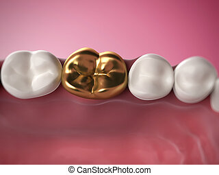 Golden tooth - 3d rendered illustration of a golden tooth