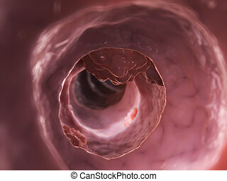 Colon tumor - 3d rendered illustration of a colon tumor