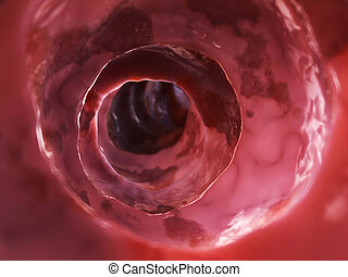Unhealthy colon - 3d rendered illustration of inside of an...