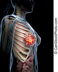 Breast cancer - 3d rendered illustration of breast cancer