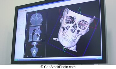 Ultrasound image of skull rotates on screen closeup