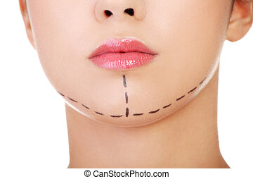 Woman marked out for cosmetic surgery. Isolated on white.