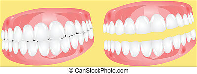 Dentures Vector Illustration - Laughing Dentures Vector...