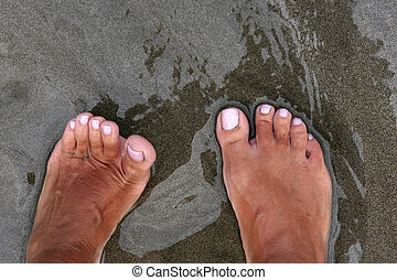 Sunburnt female leg