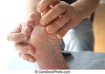 foot with dry, peeling skin - a man with dry skin on his...