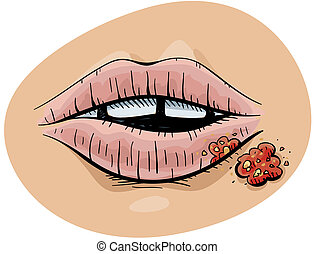 Cold Sore - A cartoon mouth with a cold sore.